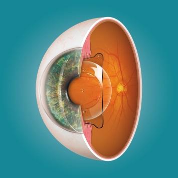 眼内コンタクトレンズ視力矯正(ICL)